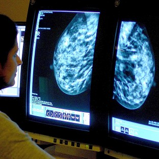 Nice recommended that a breast cancer drug should not be available for widespread use on the NHS